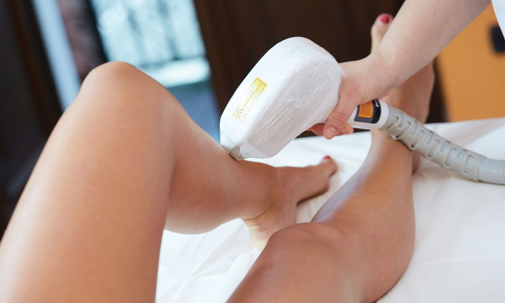laser hair reduction The Cost Benefits of Laser Hair Removal blog image
