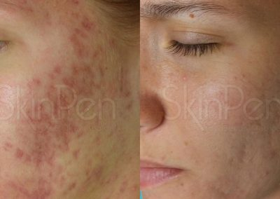 Micro Needling Before and After Gallery Image 1
