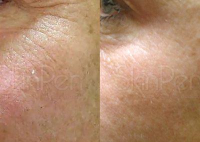 Micro Needling Before and After Gallery Image 3