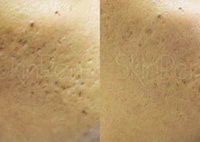 Micro Needling Before and After Gallery Image 4