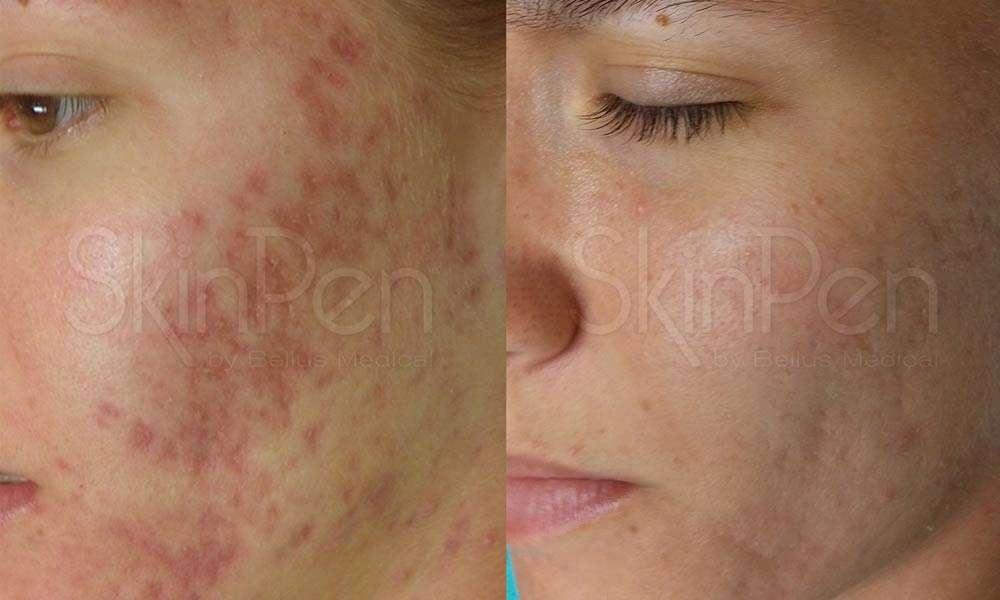 The Different Types of Acne and How It Can Be Treated