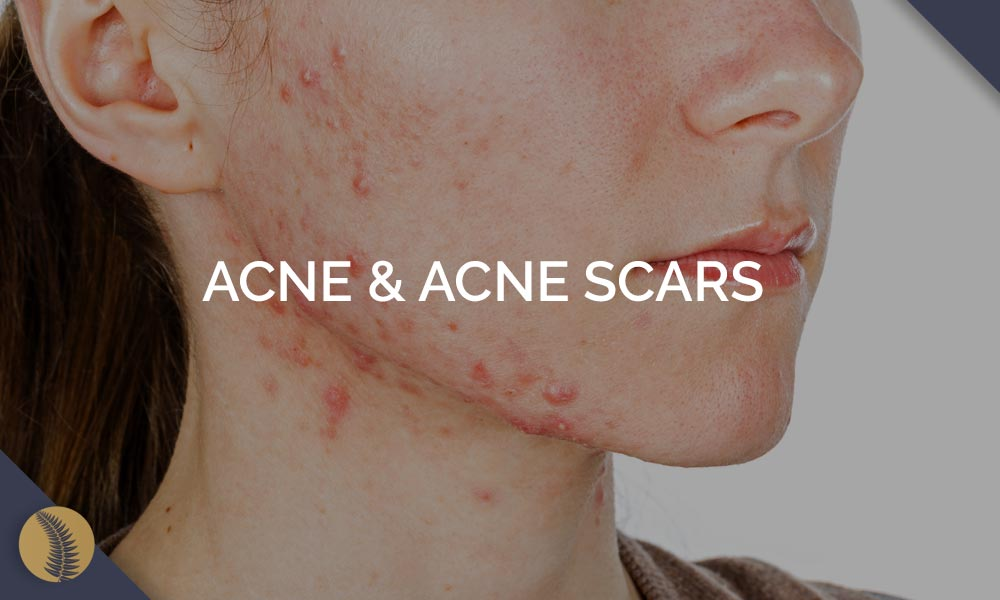 Acne and Acne Scars Condition Image Link