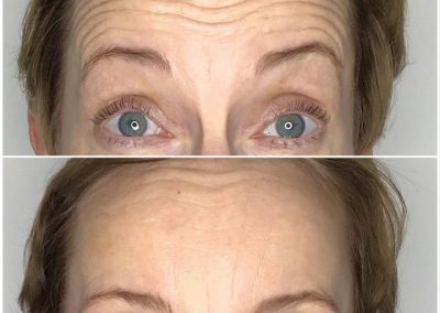 Anti Wrinkle Injections Berkhamsted Before and After Image 1
