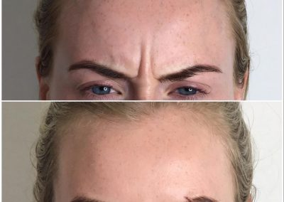 Anti Wrinkle Injections Berkhamsted Before and After Image 3