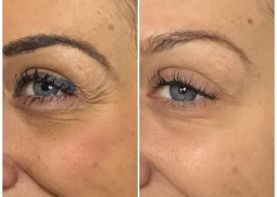Anti Wrinkle Injections Berkhamsted Before and After Image 4