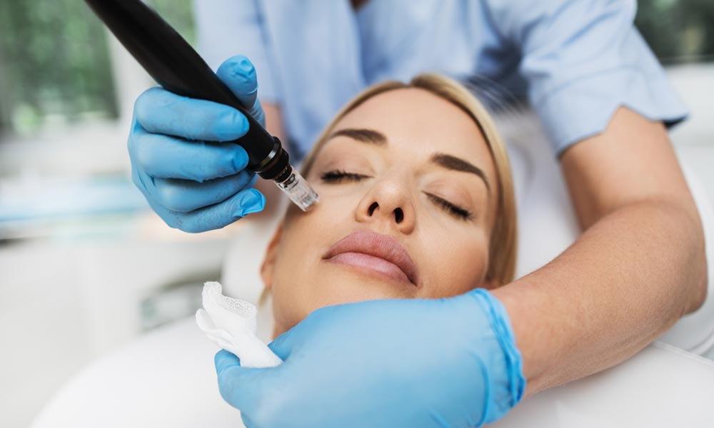 Why Microneedling Could Be The Treatment For You