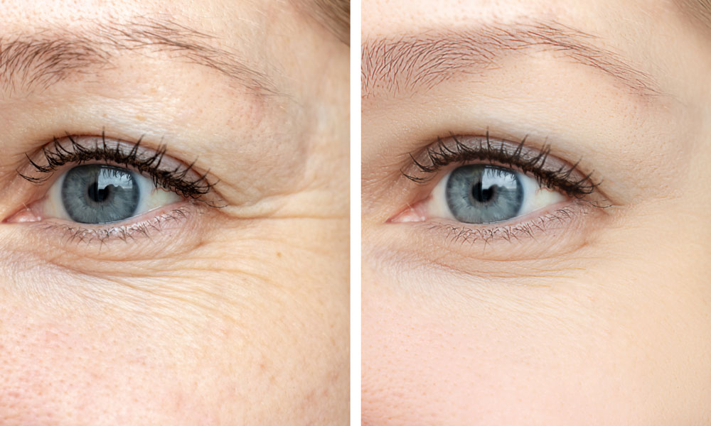 Anti Wrinkle Injections Aesthetic Tweakments the Celebs Love Blog Image